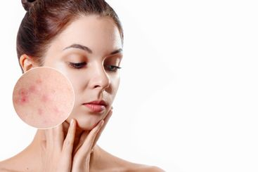 Young woman with acne skin in zoom circle. Skin care...