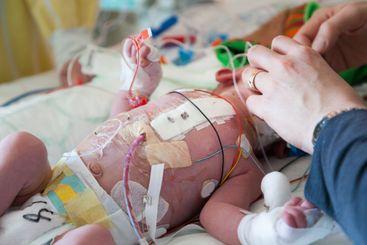 Nyfött barn på IVA efter hjärtoperation med förband.