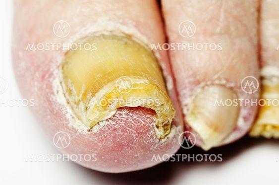 Svampeangreb søm infektion