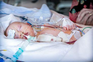 Barn intensivvård  sjukhus i Lund efter hjärtoperation.