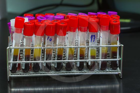 Medical equipment  Blood test in Laboratory