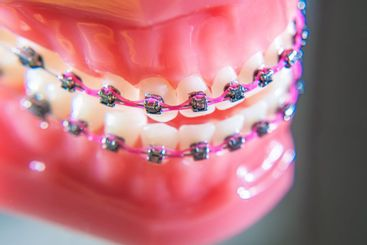 The braces are placed on the teeth in the artificial...