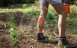 Woman with varicose veins on a hiking trip with red dot...