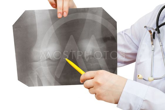 nurse points X-ray picture with human knee joint