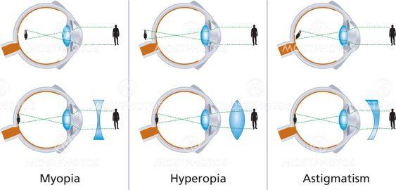 Astigmatism myopia compositus