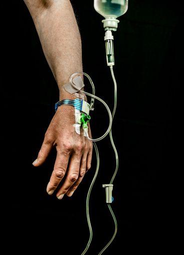 Närbild av hand med intravenöst dropp i handen.