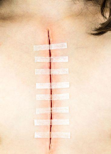 Långt tejpat operationssnitt är på bröstkorg.