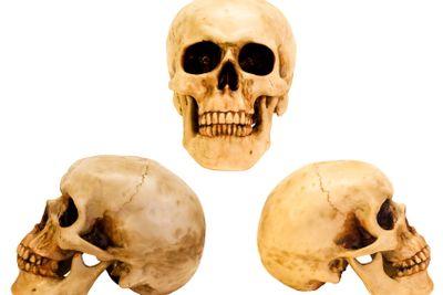 three views of the human skull