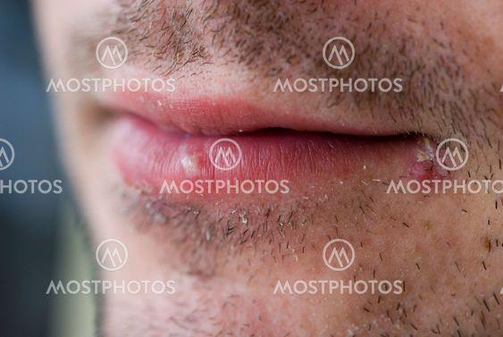 Herpes sår