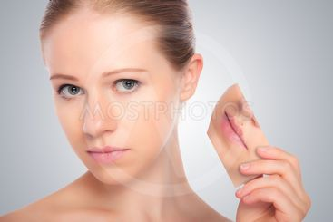 concept skincare . Skin of beauty young woman with herpes...