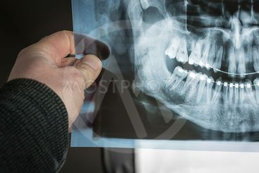 Hand holding an x-ray dental scan