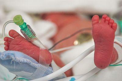 Premature Baby's Feet
