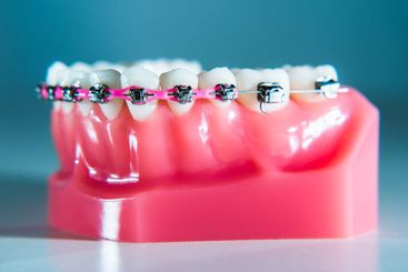 Braces are placed on the teeth in the artificial jaw...