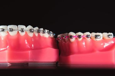 The braces are on the teeth in the artificial jaw on a...