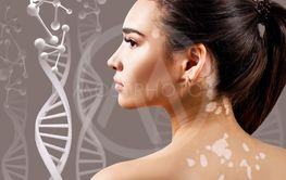 Young sensual woman with vitiligo in DNA chains.